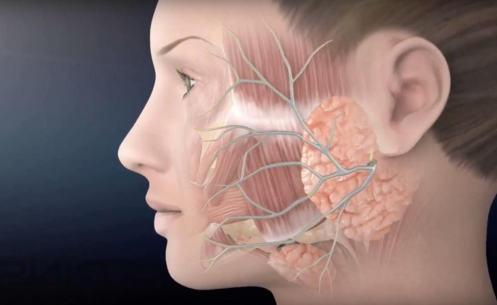 онкология околоушной слюнной железы