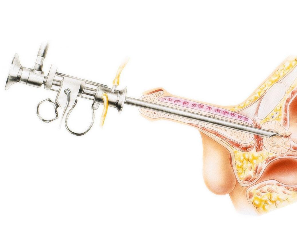 Лечение аденомы простаты без операции – как вылечить аденому без хирургии