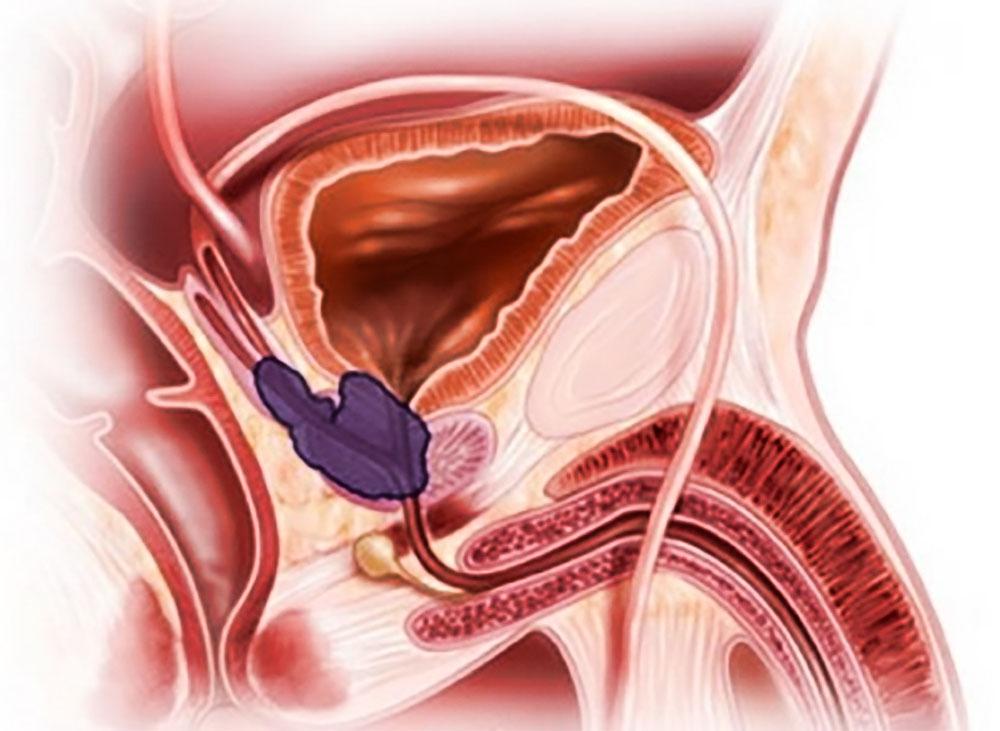 В 20 лет простатита абактериальный хронического простатита