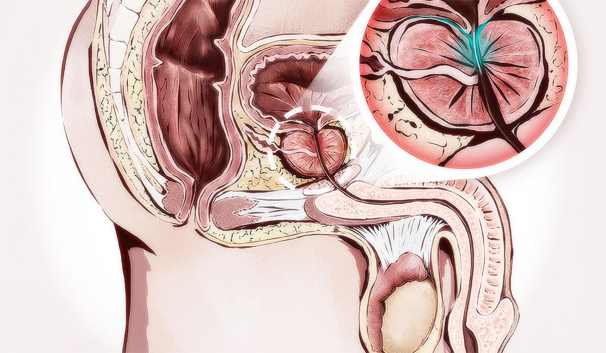 Застой крови и спермы