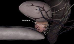 Продолжительности жизни при раке предстательной железы на разных стадиях