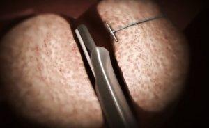 ТУР простаты: трансуретральная резекция предстательной железы - что это такое и как проводится?